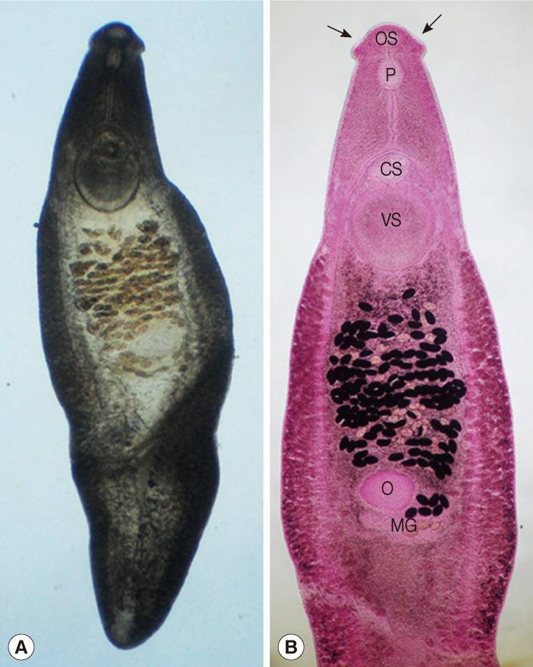 Трематоды - trematoda - qwe.wiki