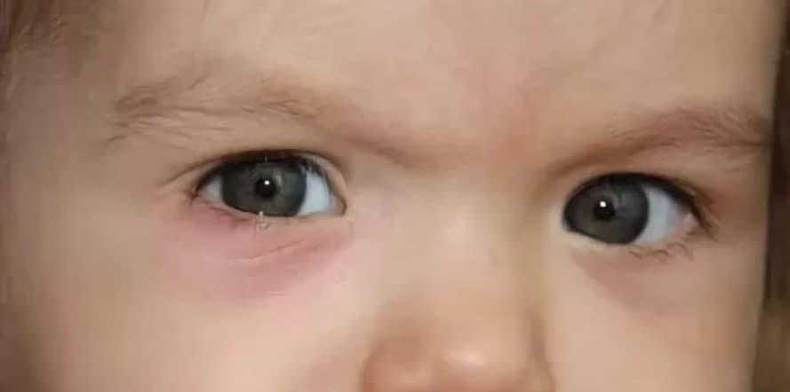 Ячмень у ребенка (32 фото): лечение ячменя на верхнем и нижнем веке в домашних условиях, как лечить грудничка