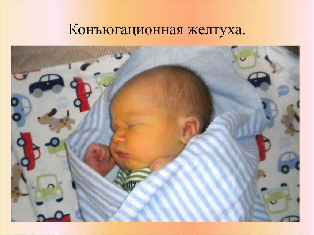 Конъюгационная желтуха у новорожденных, затяжное лечение