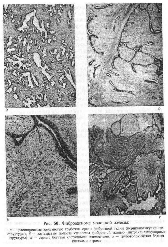 периканаликулярная фиброаденома