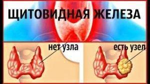 Как вылечить щитовидную железу в домашних условиях и похудеть