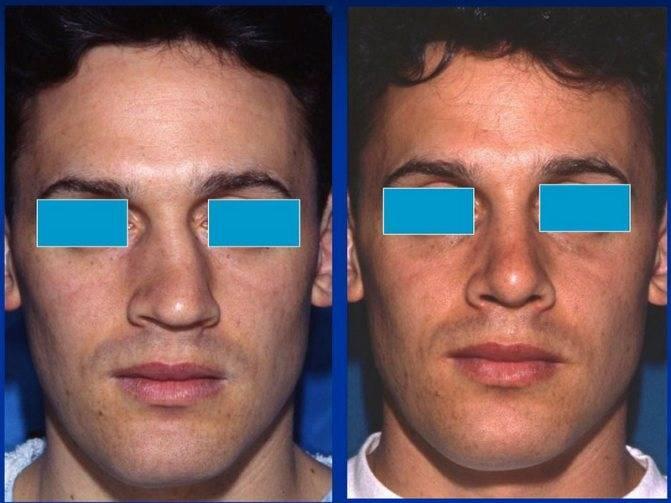 искривление перегородки носа лечение без операции