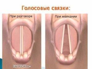 боль в голосовых связках