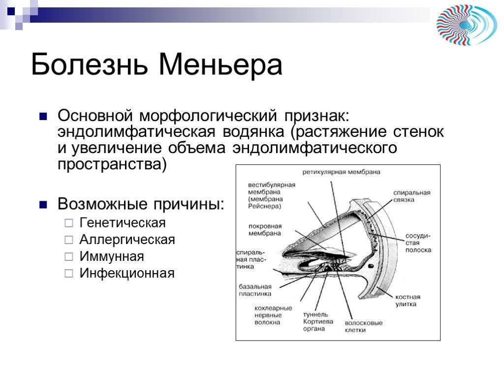 болезнь меньера симптомы