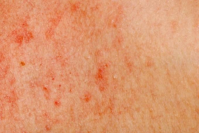 Перианальный дерматит у ребенка 3 года