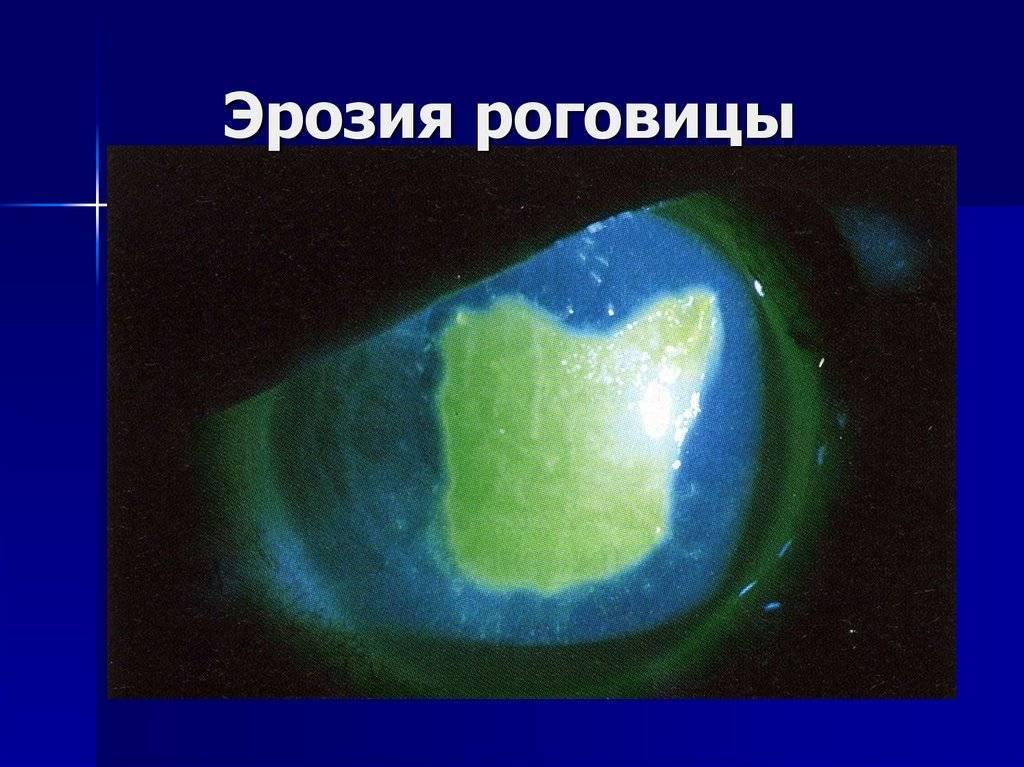 Эрозия сетчатки глаза лечение