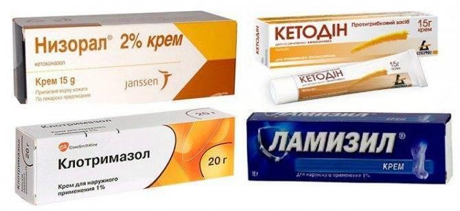 Средства от себореи кожи головы в аптеке, народные рецепты для детей и взрослых