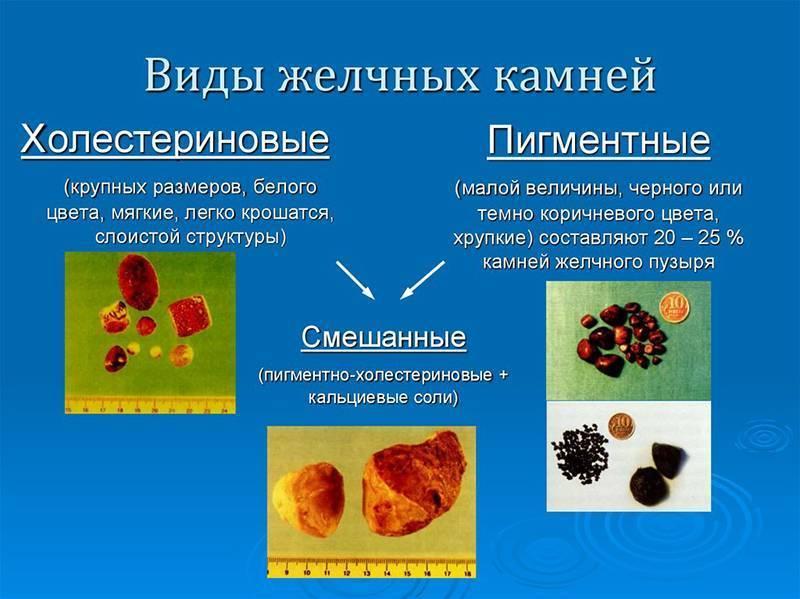 Как растворить камни в желчном пузыре без операции