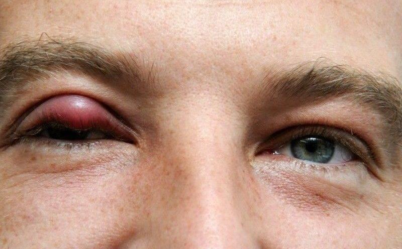 Ячмень на глазу: чем и как лечить, а также причины, симптомы, первая помощь и лечение ячменя глаза народными средствами