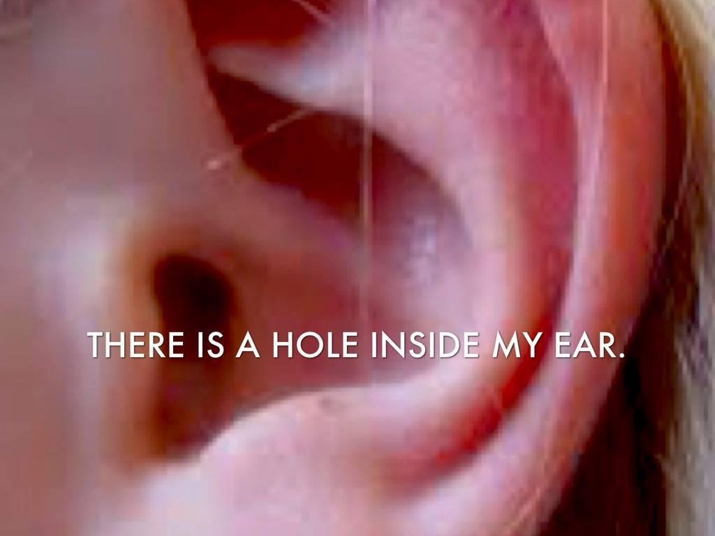Воспалилось ухо внутри под мочкой. причины опухания мочки уха и способы лечения