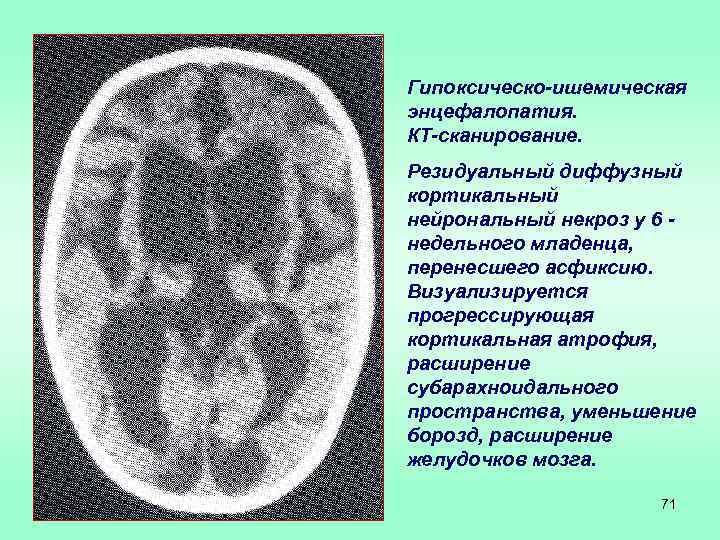 посттравматическая энцефалопатия симптомы