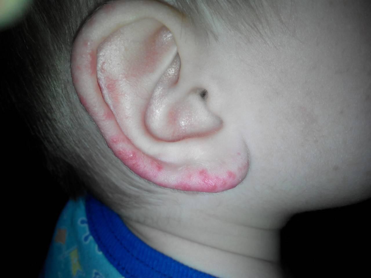 Герпес на ухе (в ухе и за ухом): симптомы, причины, лечение (фото и видео)