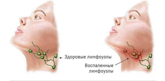 Лимфоузлы на печени что это такое и как лечить - лечение печени