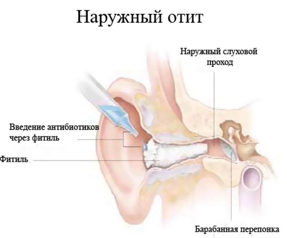 Диффузный наружный отит: методы лечения инфекции