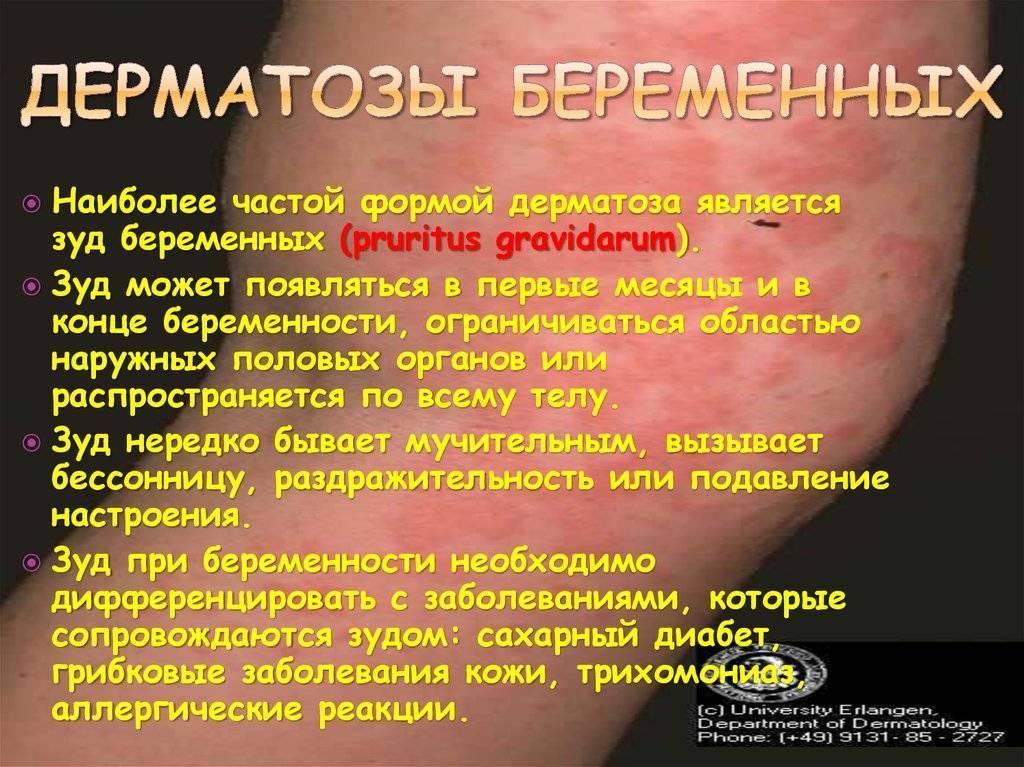 дерматит во время беременности