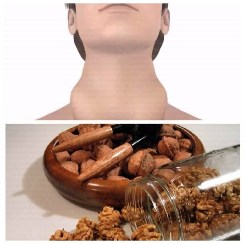 как лечить щитовидную железу в домашних условиях