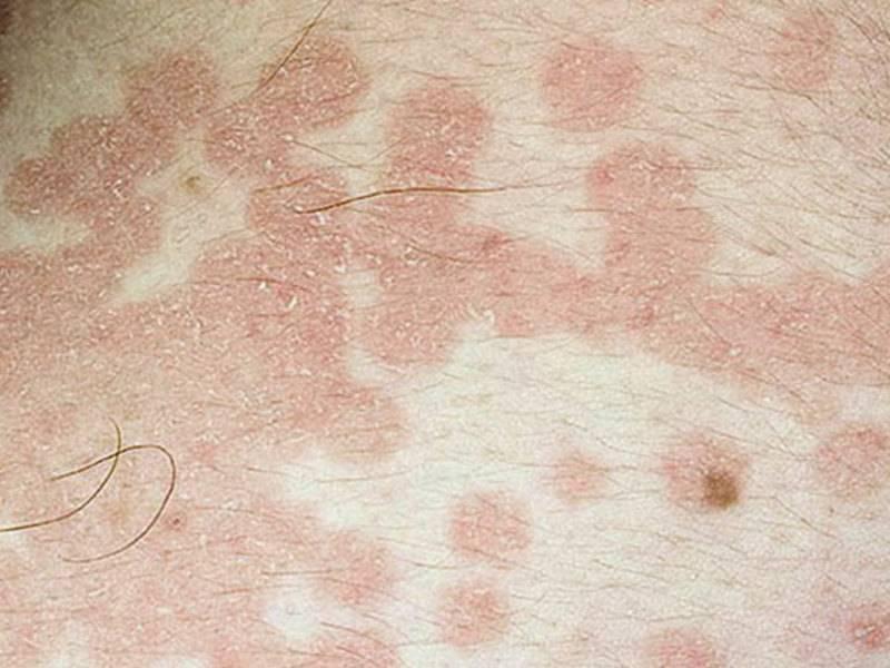 Как отличить опоясывавший лишай от дерматита