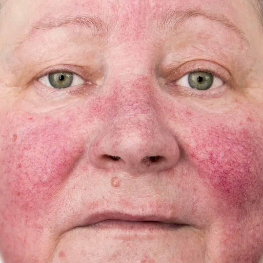 хронический дерматит симптомы