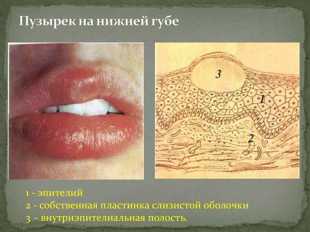 Эффективное лечение герпетического стоматита