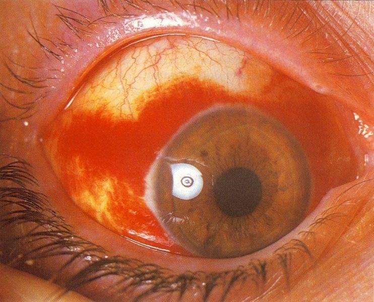 нарост на глазном яблоке у человека