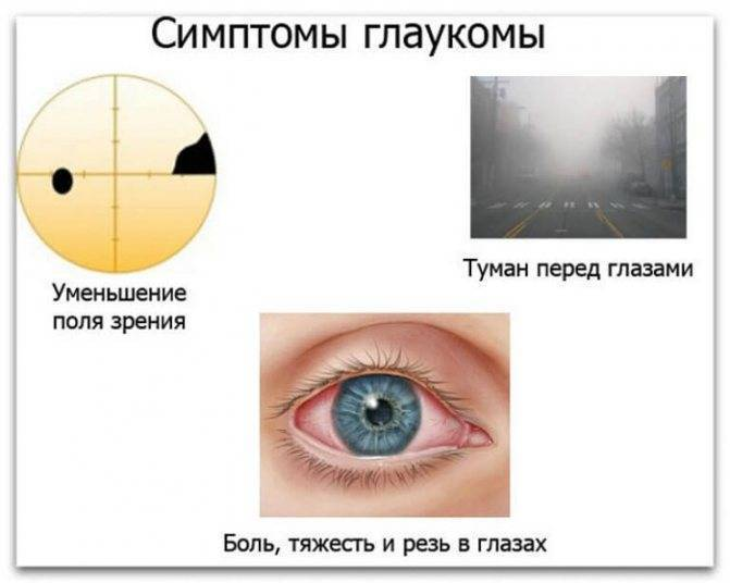 Вижу как в тумане почему