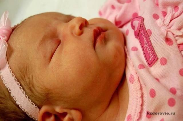 Конъюгационная желтуха у новорожденных: причины появления, диагностика, методы лечения