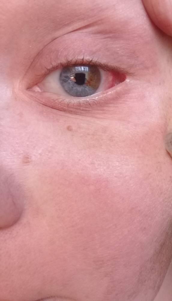 Покраснел глаз в углу и болит