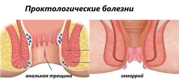 геморрой и рак симптомы
