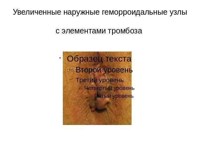 Тромбоз наружных геморроидальных узлов при беременности