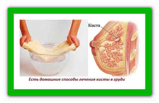 Методы лечения кисты молочных желез народными средствами