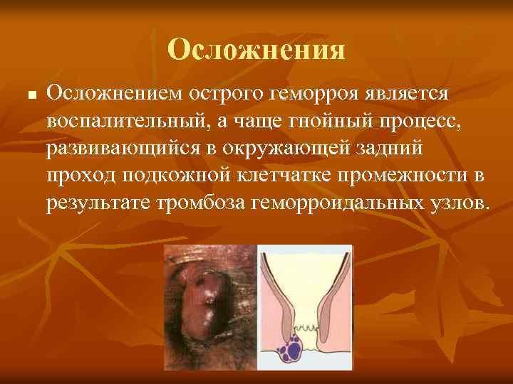 Тромбэктомия: как проводится удаление тромбированных геморроидальных узлов?