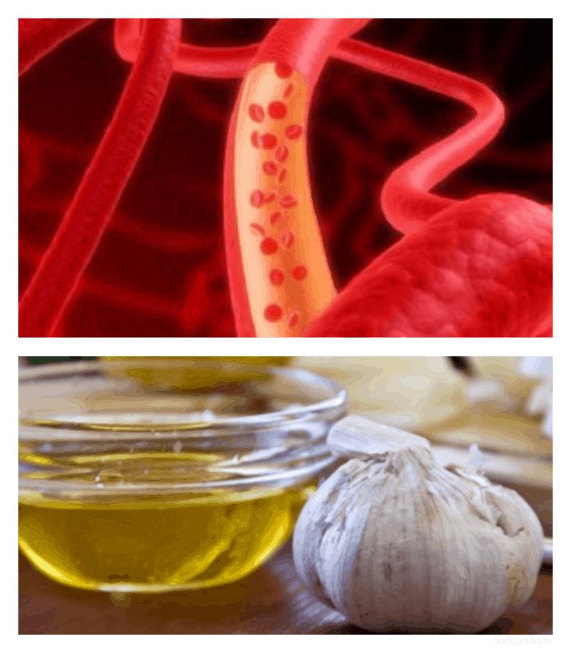 Очищение сосудов от атеросклеротических бляшек и тромбов