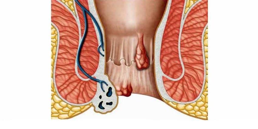 внутренний хронический геморрой лечение