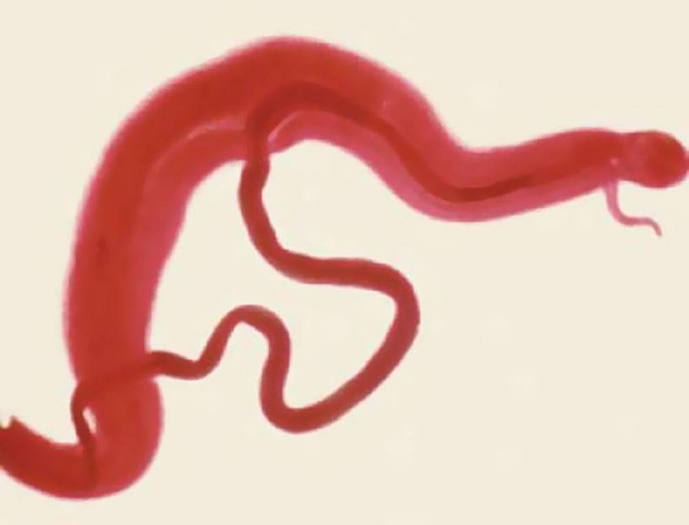 Мочеполовой, кишечный и японский шистосомоз: способы заражения, симптомы, диагностика, лечение