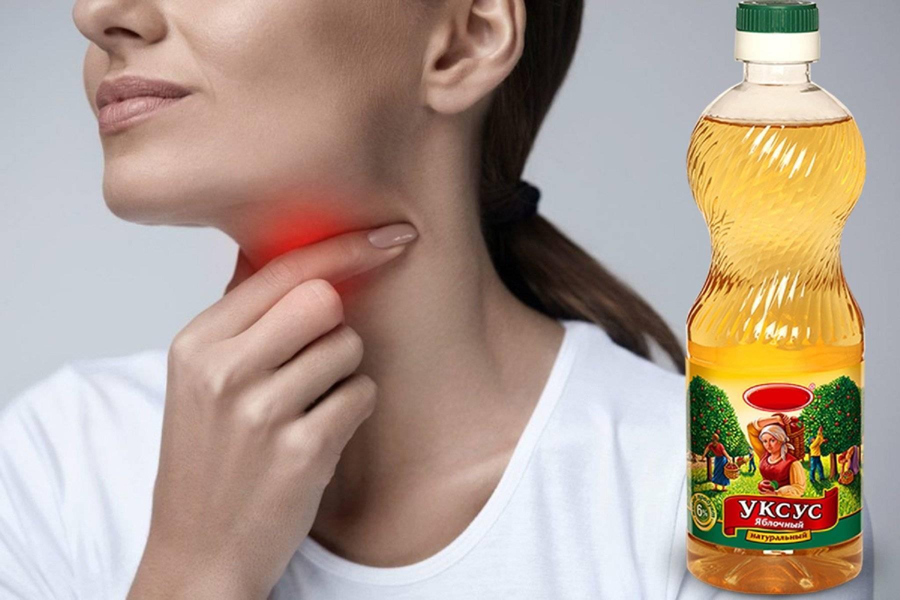 полоскание горла уксусом