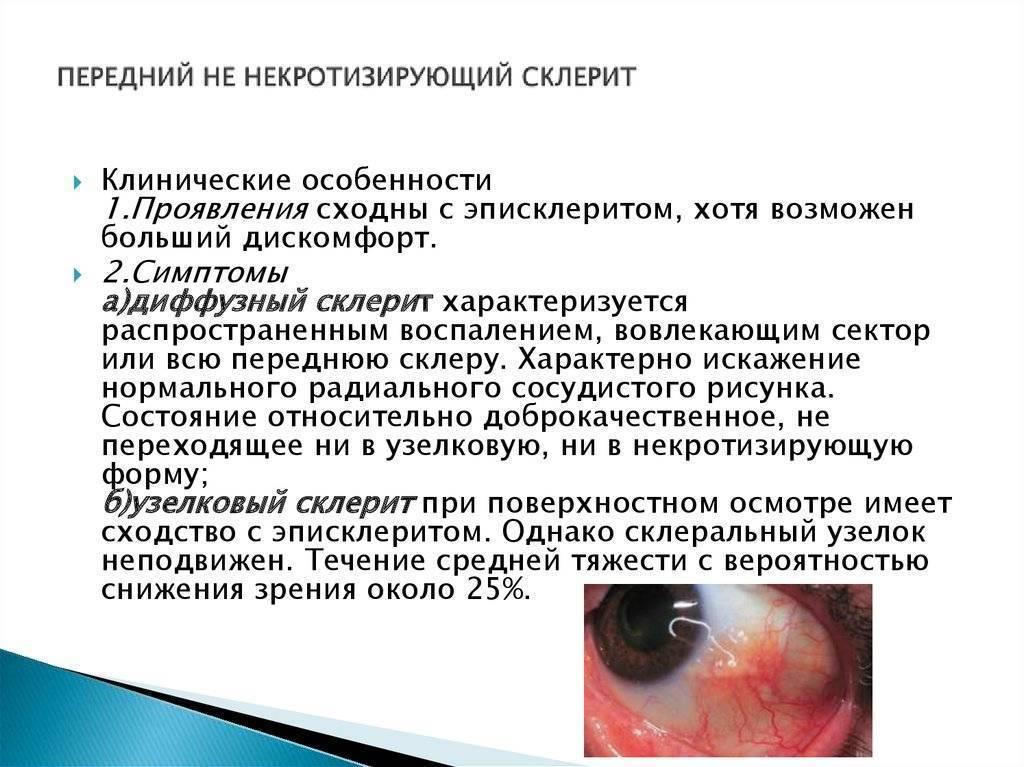эписклерит лечение капли