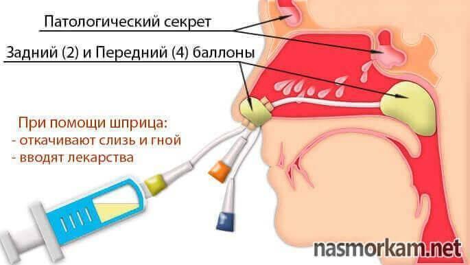 Лечение ямик-катетером — альтернатива проколу при гайморите
