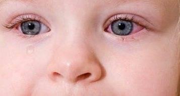 конъюнктивит у детей можно ли гулять