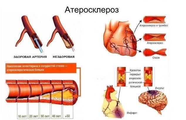 атеросклероз сосудов головного мозга у пожилых