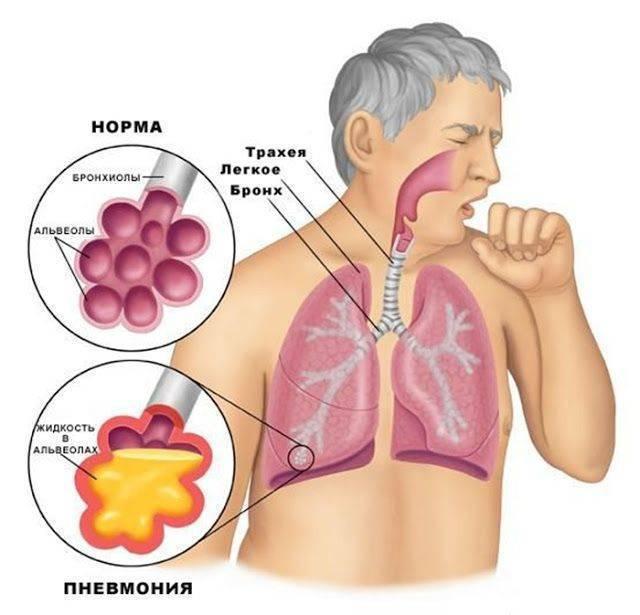 Остаточный кашель после бронхита у взрослых отзывы