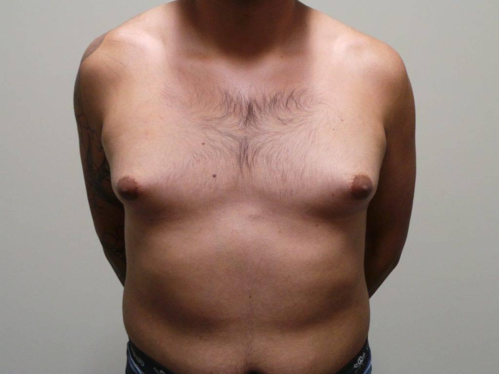 Мастопатия у мужчин: причины заболевания, симптомы, лечение. что такое мужская мастопатия? особенности протекания и лечения мужской мастопатии.
