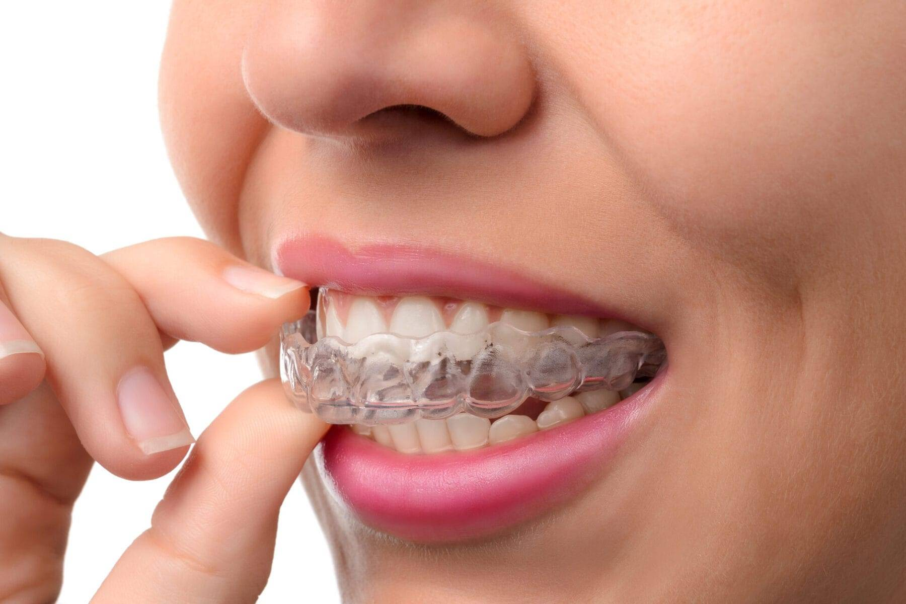 Скобы на зубы для детей и взрослых