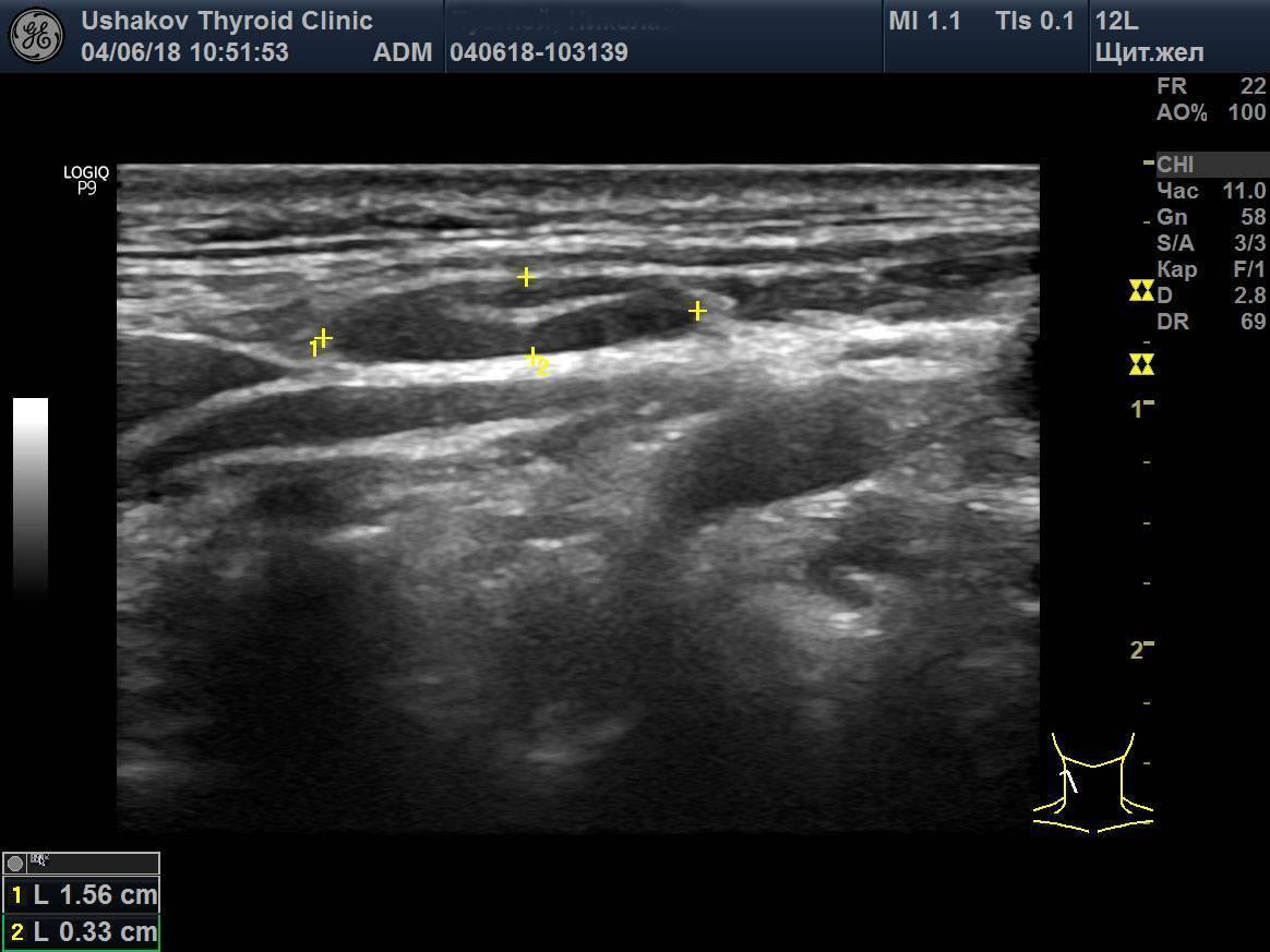 Узи щитовидной железы: подготовка, что показывает, нормы и как проводится