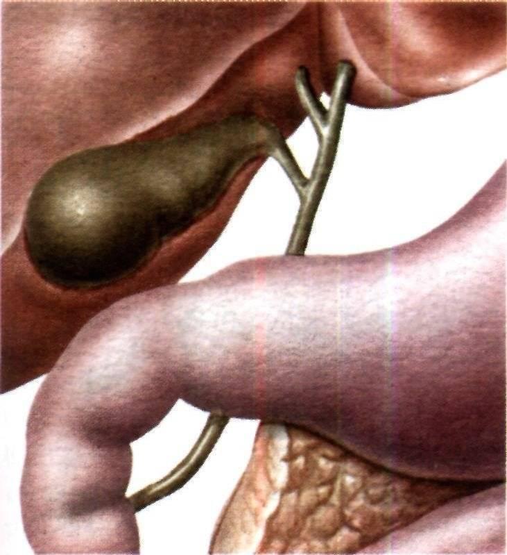 Как лечить холецистит?