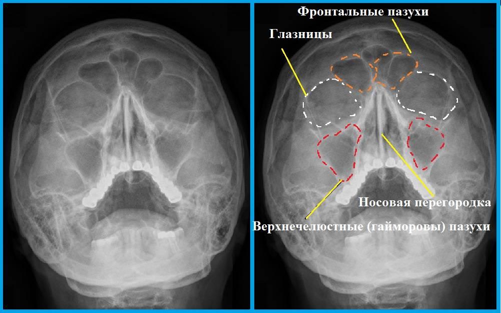 рентген пазухи носа