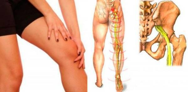 Невралгия седалищного нерва | симптомы | диагностика | лечение - docdoc.ru