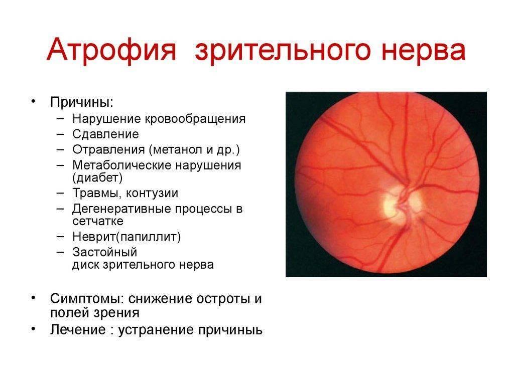 частичная атрофия зрительного нерва