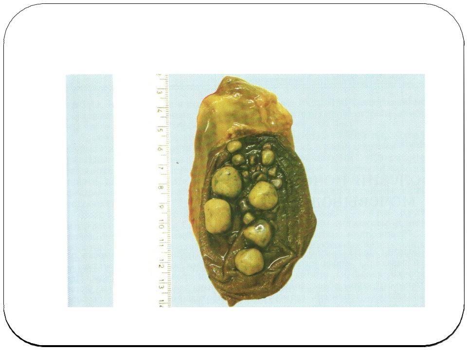 Удаление камней из желчного пузыря: операция и её ход, показания, реабилитация