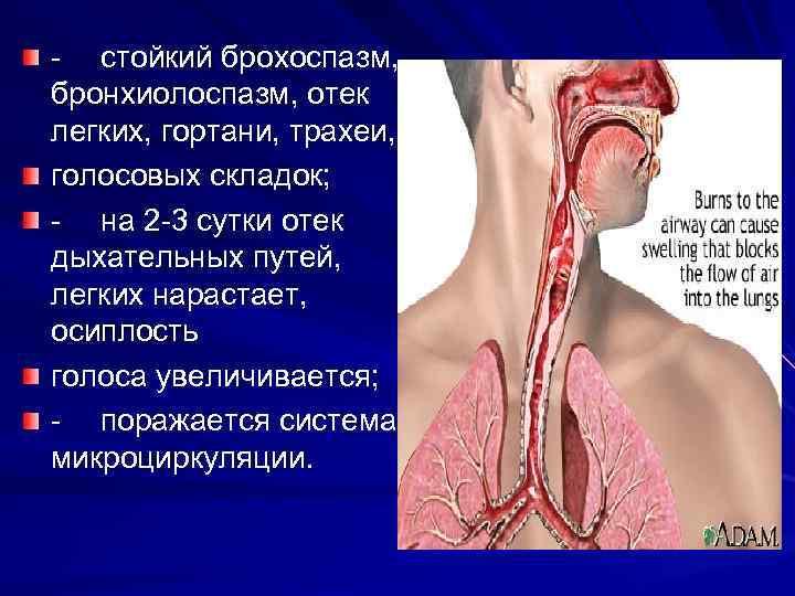 Болит гортань при глотании и кашле