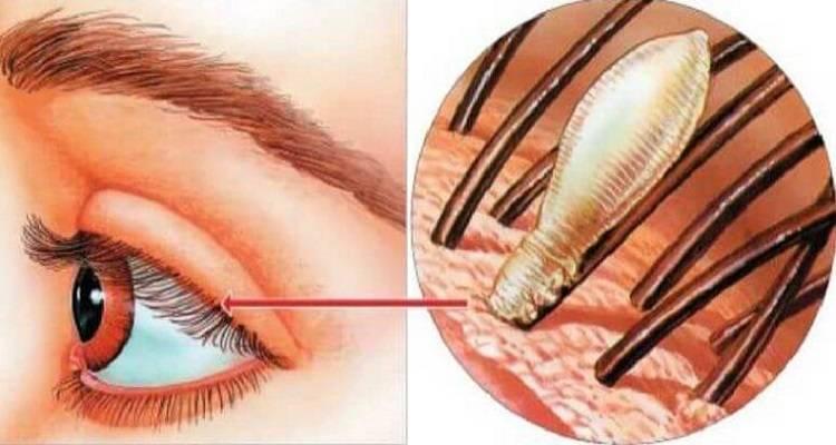 Симптомы и лечение демодекоза глаз у человека